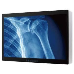 "M320TF-GS 32"" Медицинский монитор 4K UHD, 3840x2160, яркость 350 нит, контрастность 1000:1, 3G SDI, DP 1.2, VGA, 2xHDMI, 2xDVI, защитное стекло, Аудио, 24 V DC, Адаптер питания 100-240AC"